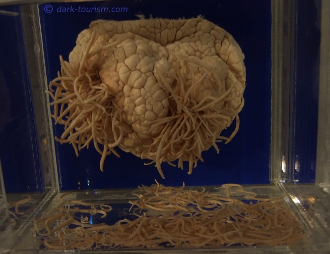 20 09 2018   worm infested dolphin brain, Meguro parasitological museum